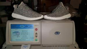 Yeezy boost for kidney